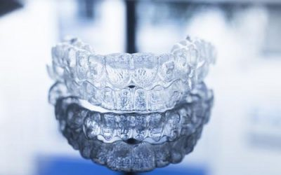 Invisalign Treatment as An Adult